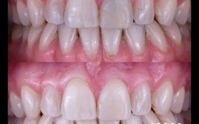 ¿Por qué un diente puede cambiar de color?