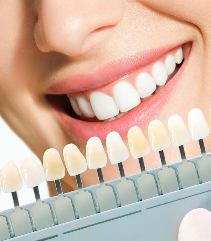 Estética dental odontolaser