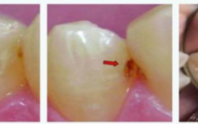 ¿Cómo y por qué salen las caries dentales?