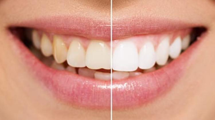 ¿Qué es y Cómo funciona un blanqueamiento dental?