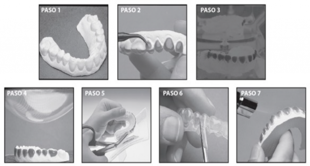 Blanqueamiento dental Odontolaser