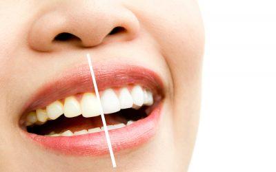 ¿Cuáles son los tipos de blanqueamiento dental?