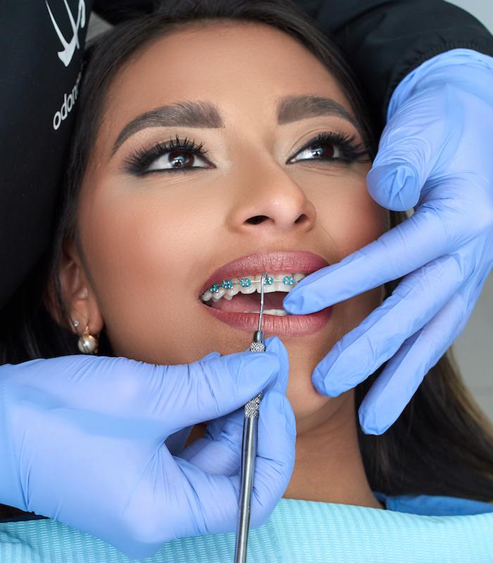 Ortodoncia Odontolaser